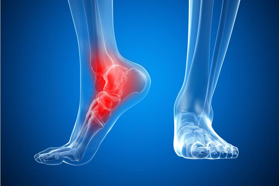Как облегчить боль в суставах и сухожилиях