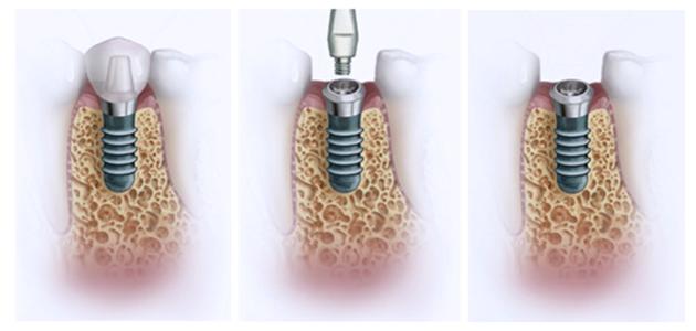 Процедура имплантации зубов: этапы восстановлении эстетики улыбки
