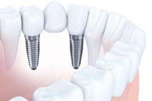 Кому можно устанавливать зубные имплантаты и куда обращаться