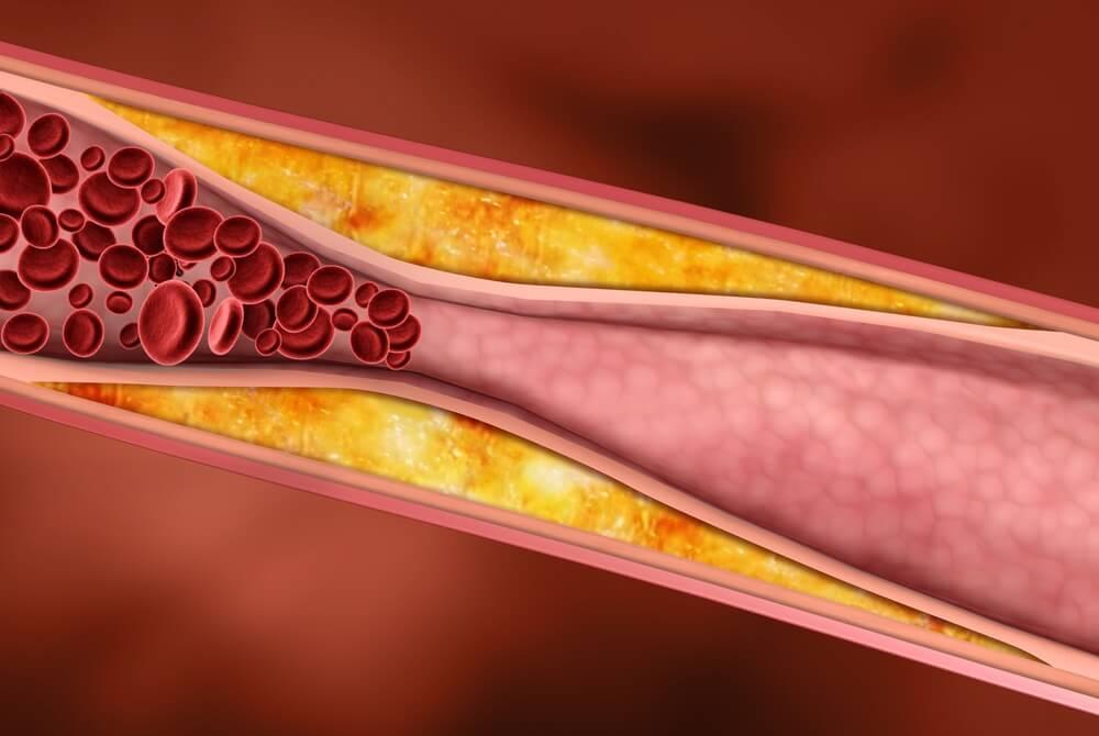 10 проверенных средств против высокого уровня холестерина