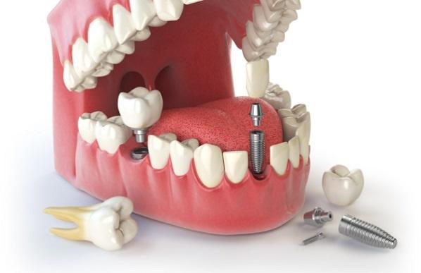 Что вам нужно знать об имплантации зубов