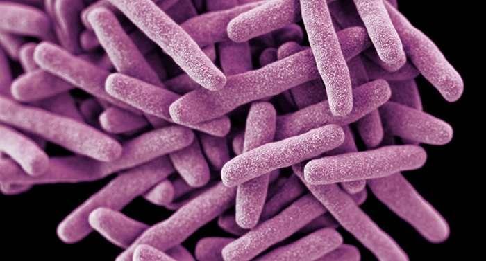 Туберкулез — болезнь, которая может затронуть абсолютно каждого