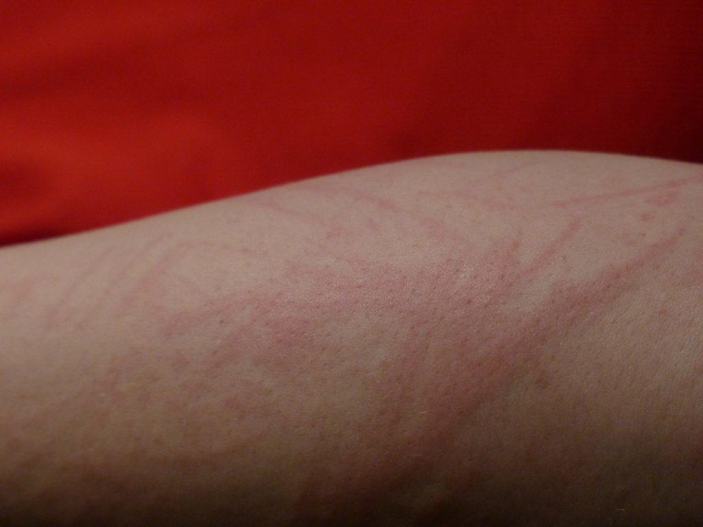Необычные симптомы COVID-19, о которых вы могли не знать