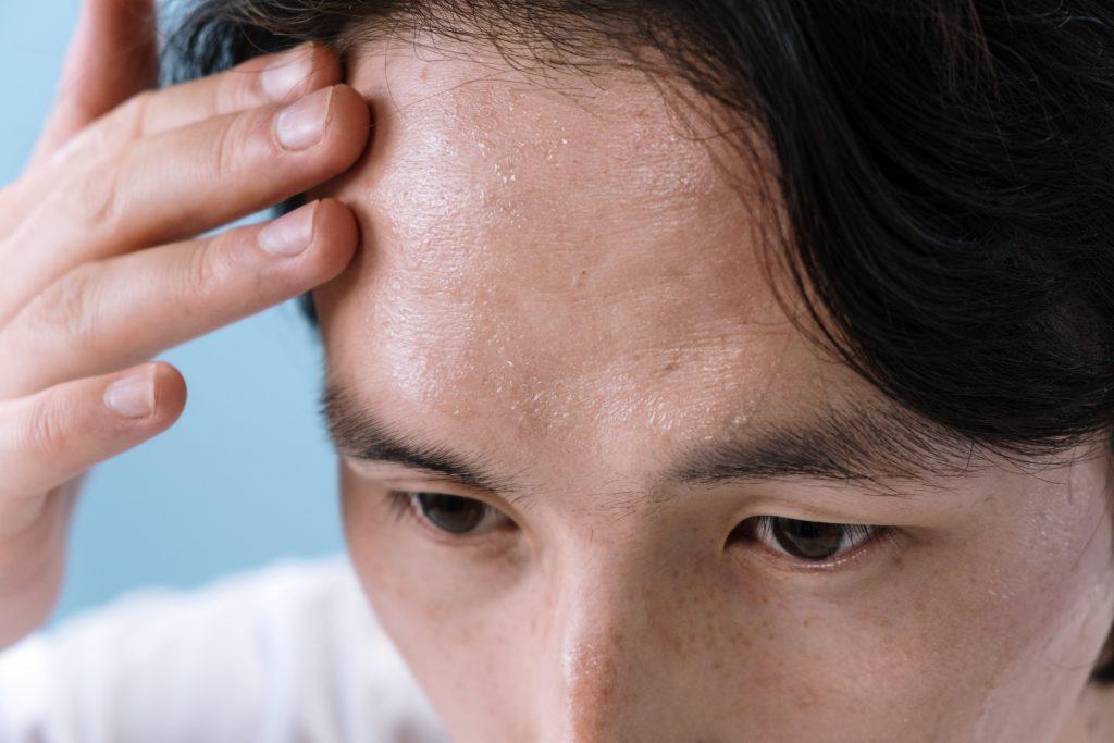 Потливость ночью может быть симптомом рака: что нужно знать