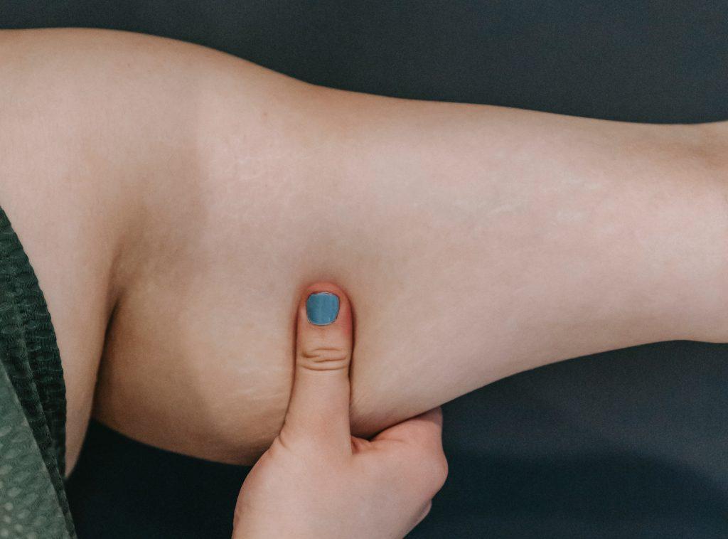 5 простых (и эффективных) способов избавиться от веса воды в теле
